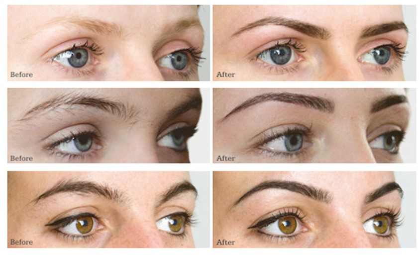 before and after hd brows